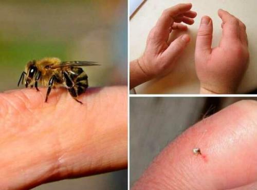 Что поможет от укуса пчелы и осы в домашних условиях. Как обрабатывать пчелиный укус